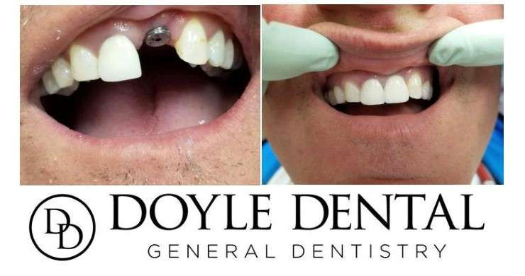 Doyle Dental - dentist  | Photo 6 of 7 | Address: 172 NY-311, Carmel Hamlet, NY 10512, USA | Phone: (845) 225-3406