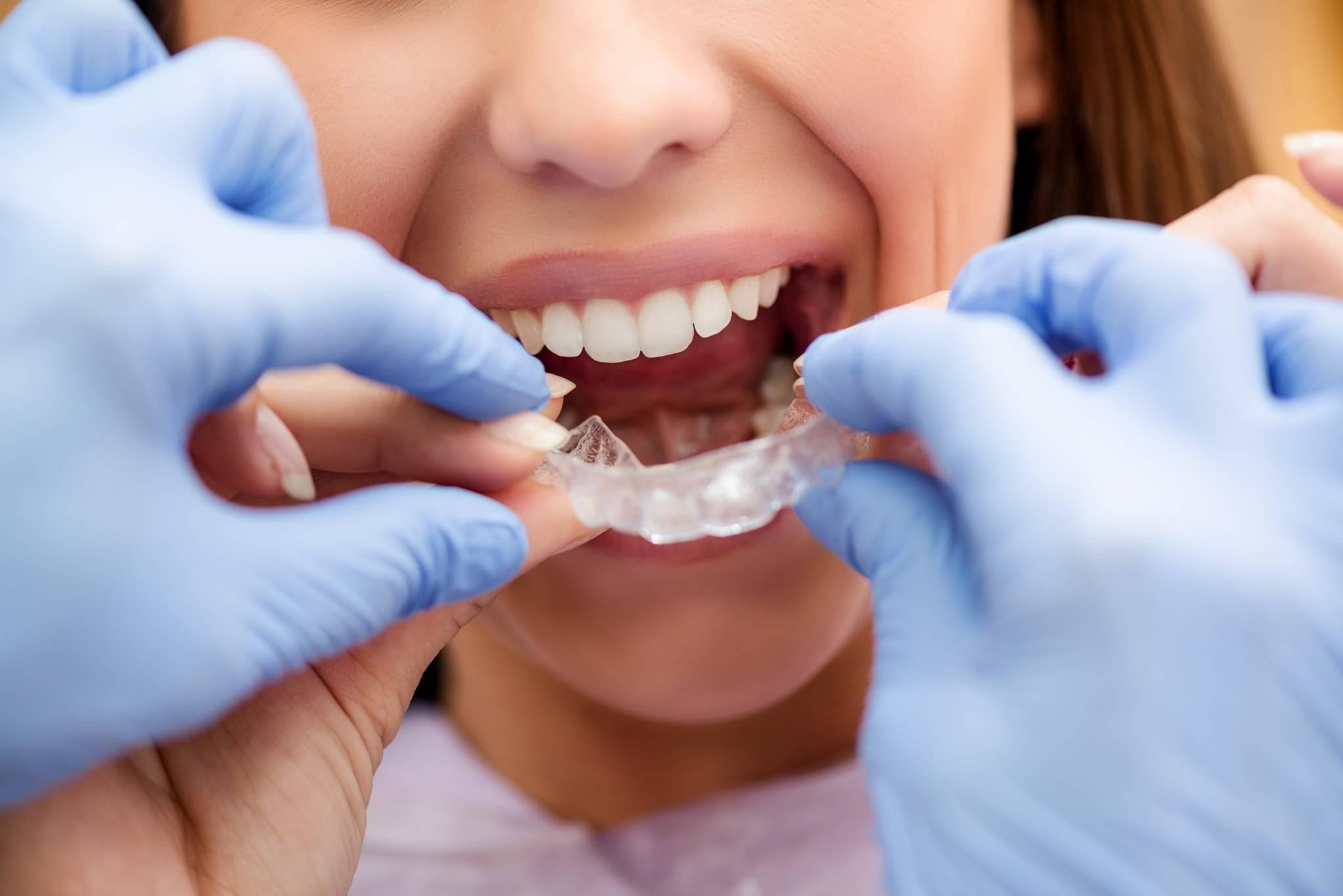 Simply Teeth - dentist  | Photo 3 of 4 | Address: 438 Green Ln, Ilford IG3 9LD, UK | Phone: +44 20 8590 0575