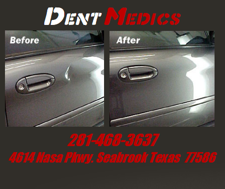 Dent Medics - car repair  | Photo 1 of 2 | Address: 4614 NASA Road 1, Seabrook, TX 77586, USA | Phone: (281) 468-3637