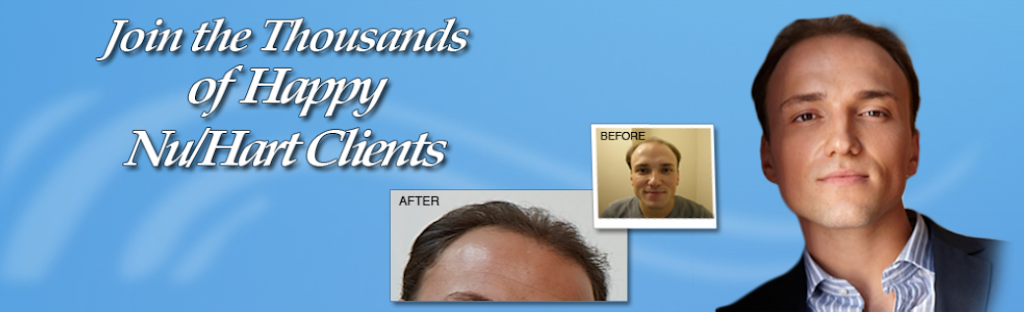 Nu-Hart Clinic - hair care  | Photo 3 of 4 | Address: 600 W Dekalb Pike # 301, King of Prussia, PA 19406, USA | Phone: (610) 337-3277
