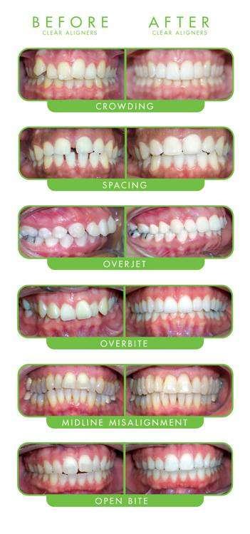 Hart Dental - dentist  | Photo 3 of 10 | Address: 728 W Northwest Hwy, Barrington, IL 60010, USA | Phone: (847) 865-4278