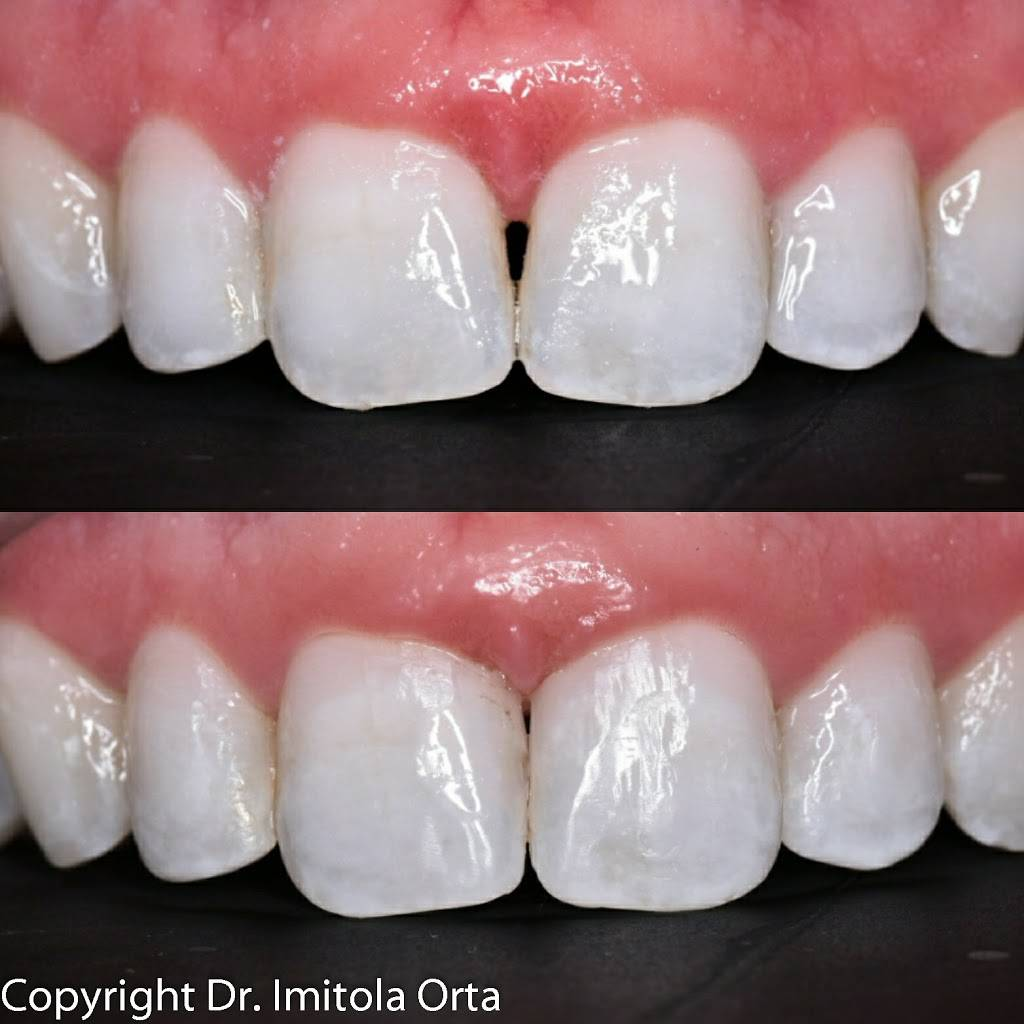 North Texas Dental Surgery Wisdom Teeth and Denture Implant Cent - dentist  | Photo 2 of 7 | Address: 5345 W University Dr #100, McKinney, TX 75071, USA | Phone: (214) 592-0692