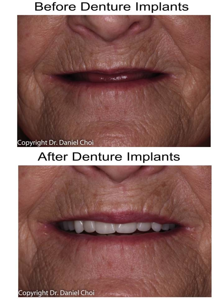 North Texas Dental Surgery Wisdom Teeth and Denture Implant Cent - dentist  | Photo 6 of 7 | Address: 5345 W University Dr #100, McKinney, TX 75071, USA | Phone: (214) 592-0692