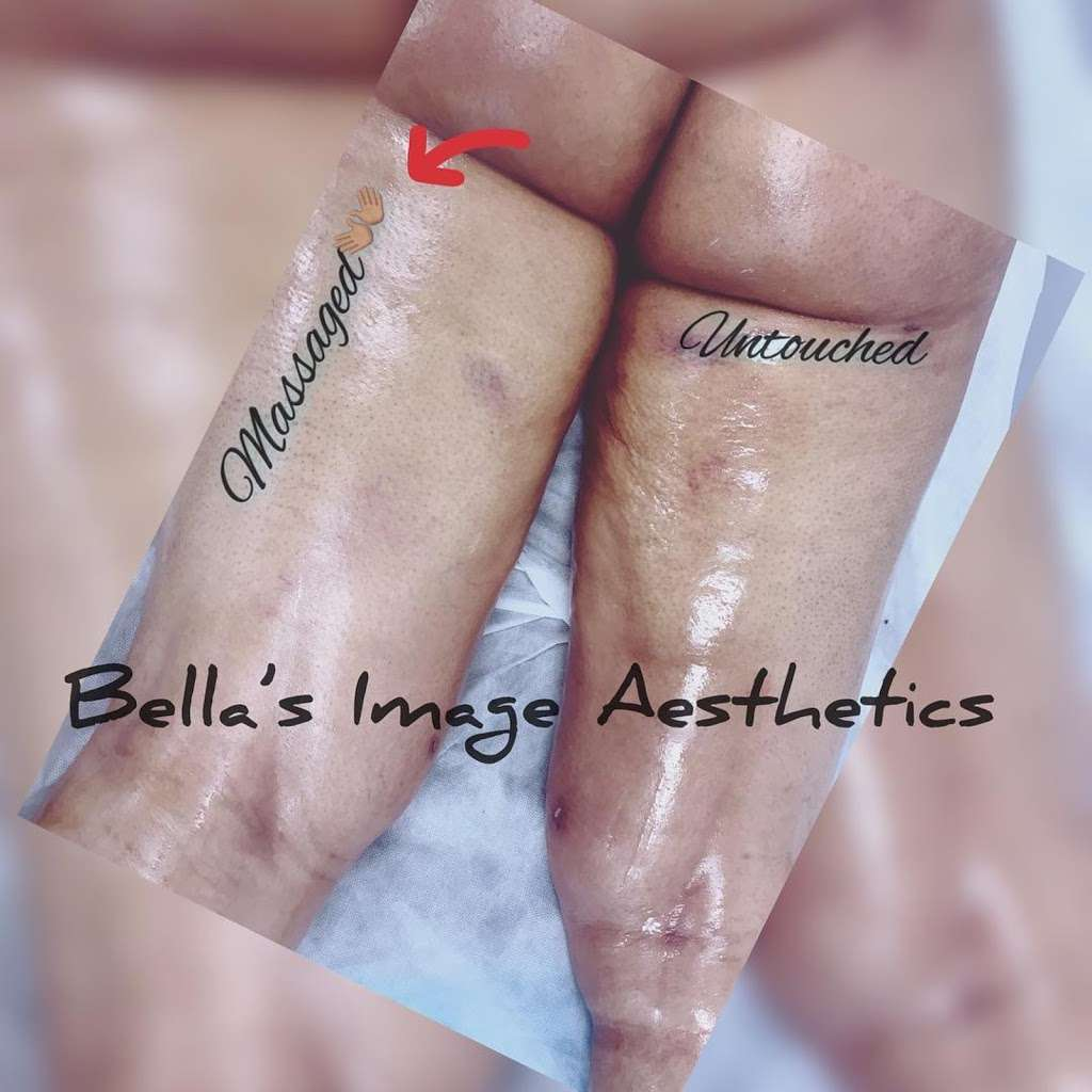 Bella's Image Aesthetics - spa  | Photo 8 of 10 | Address: 249-12 Jericho Turnpike, Floral Park, NY 11001, USA | Phone: (516) 502-4939