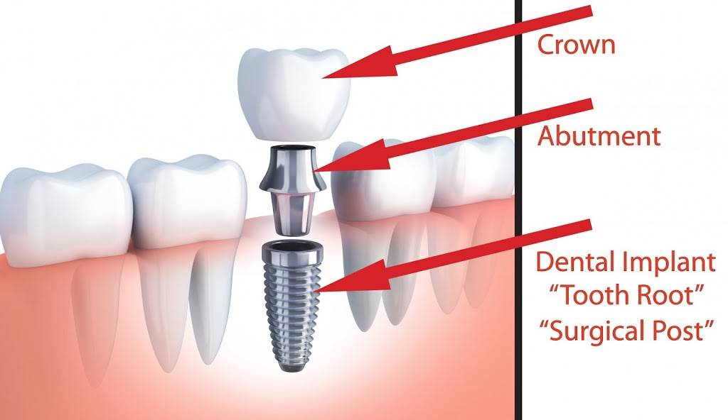 Dental Hub - dentist  | Photo 6 of 9 | Address: 3483 W, FM 544 SUITE 112, Wylie, TX 75098, USA | Phone: (972) 371-0441