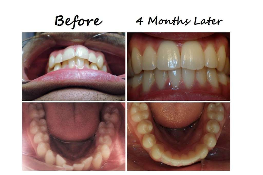 Monroe Family Dentistry - dentist  | Photo 10 of 10 | Address: 181 Main St, Monroe, CT 06468, USA | Phone: (203) 445-8365