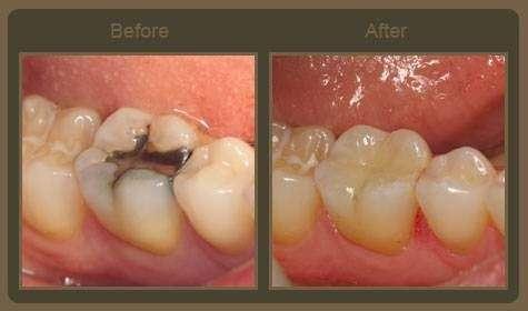 Dr. Benjamin Solomowitz - dentist    Photo 8 of 9   Address: 407 9th St, Brooklyn, NY 11215, USA   Phone: (718) 878-4871