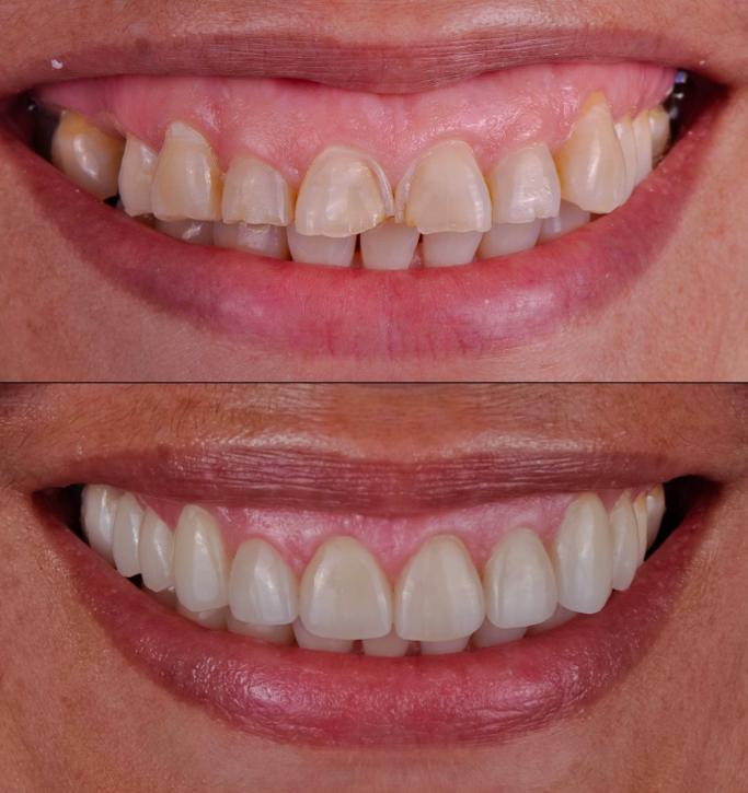 Smile Design Center of Westchester - dentist    Photo 9 of 10   Address: 2042 Albany Post Rd #3, Croton-On-Hudson, NY 10520, USA   Phone: (914) 339-0469