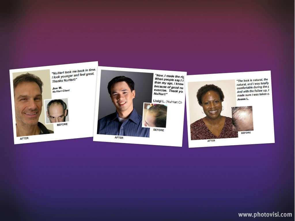 Nu-Hart Clinic - hair care  | Photo 4 of 4 | Address: 600 W Dekalb Pike # 301, King of Prussia, PA 19406, USA | Phone: (610) 337-3277