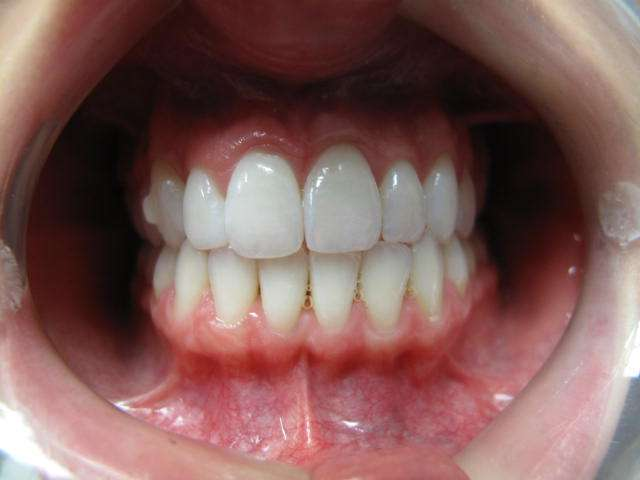 Leesburg Spa Dentistry: C. Anne Saxena, DMD - dentist  | Photo 3 of 6 | Address: 44790 Maynard Square #140, Ashburn, VA 20147, USA | Phone: (703) 423-0821