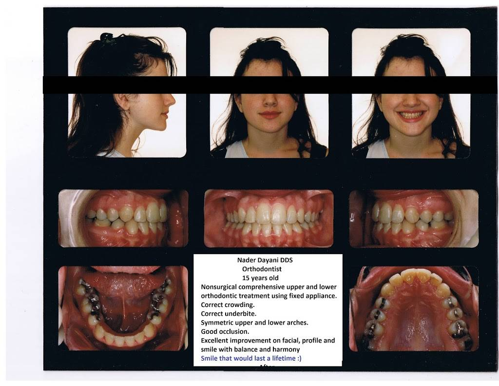 Nader Dayani, DDS - dentist  | Photo 7 of 9 | Address: 18124 Culver Dr ste a, Irvine, CA 92612, USA | Phone: (949) 552-5890