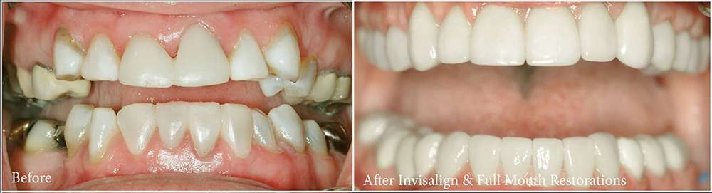 David de Jongh, DDS - dentist  | Photo 1 of 8 | Address: 13141 Farm to Market 1960 Rd W Ste 300, Houston, TX 77065, USA | Phone: (832) 912-6670