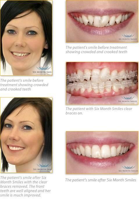 Minnesota Dental Arts - doctor  | Photo 8 of 19 | Address: 5565 Blaine Ave E #290, Inver Grove Heights, MN 55076, USA | Phone: (651) 552-0404