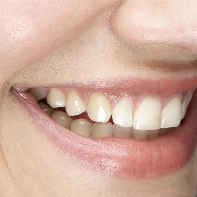 Lakeland Smiles - dentist  | Photo 8 of 10 | Address: 1220 W Daughtery Rd, Lakeland, FL 33810, USA | Phone: (863) 815-9009