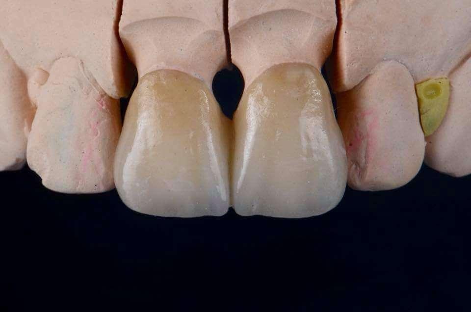 Bruce Lee Dental Art Laboratory - dentist    Photo 2 of 3   Address: 7 Lesa Ln, Hillsdale, NJ 07642, USA   Phone: (201) 784-8777