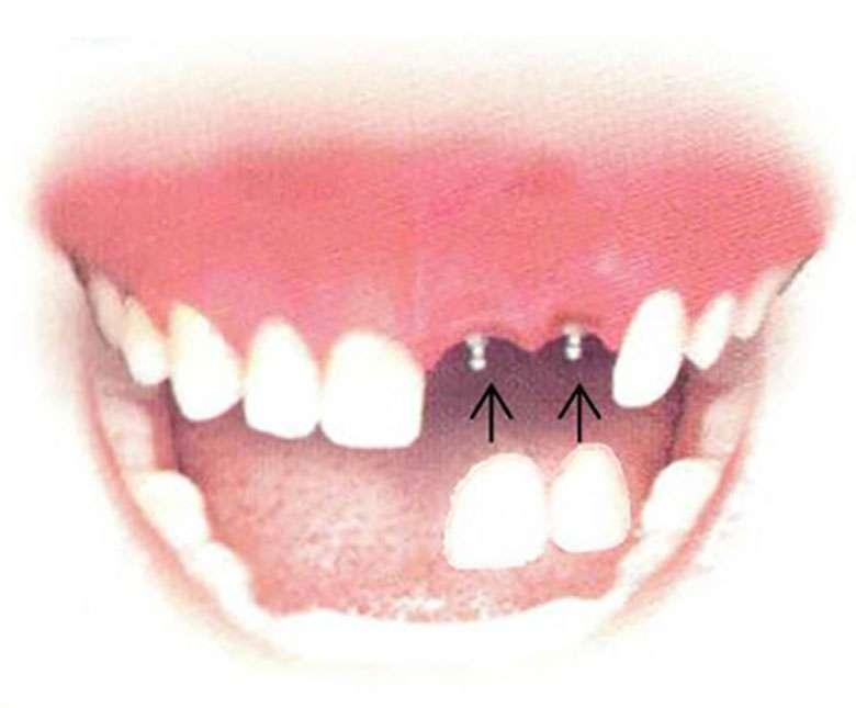 Dental Implant Solutions Glendale, NY - dentist  | Photo 2 of 4 | Address: 76-01 Myrtle Ave #1, Glendale, NY 11385, USA | Phone: (718) 804-5579