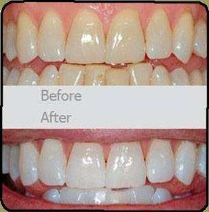 Dr. Benjamin Solomowitz - dentist    Photo 5 of 9   Address: 407 9th St, Brooklyn, NY 11215, USA   Phone: (718) 878-4871