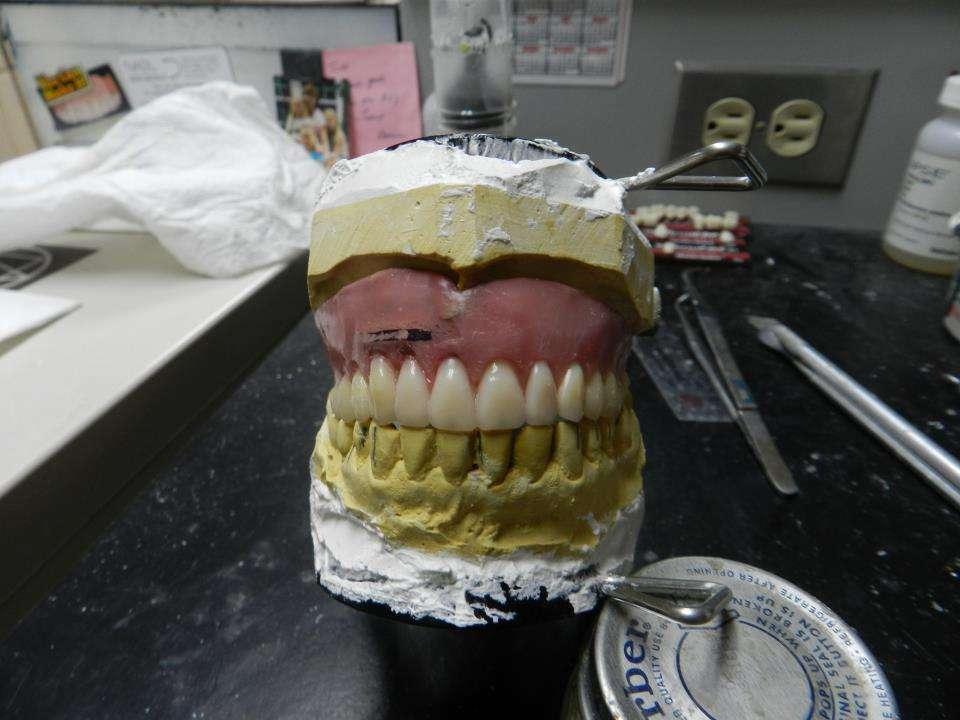 Brusos Denture Services - dentist    Photo 1 of 3   Address: 15 Hickory Ln, Hudson, MA 01749, USA   Phone: (978) 562-0105