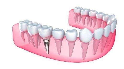 Dr Naser Sharifi Implant Dentistry - dentist  | Photo 2 of 10 | Address: 25315 80th Ave Ste 1, Queens, NY 11004, USA | Phone: (718) 470-9000