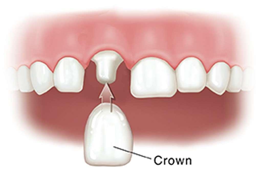 Lakeland Smiles - dentist  | Photo 9 of 10 | Address: 1220 W Daughtery Rd, Lakeland, FL 33810, USA | Phone: (863) 815-9009