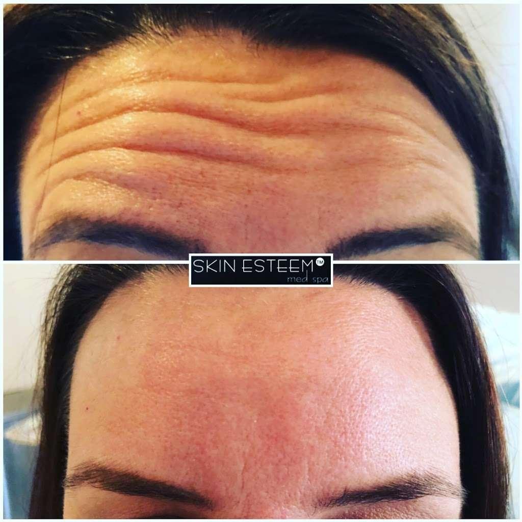 Skin Esteem Med Spa - spa    Photo 9 of 9   Address: 431 Country Club Way, Kingston, MA 02364, USA   Phone: (781) 422-1509
