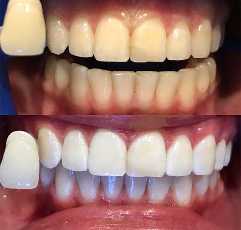 Lakeland Smiles - dentist  | Photo 3 of 10 | Address: 1220 W Daughtery Rd, Lakeland, FL 33810, USA | Phone: (863) 815-9009