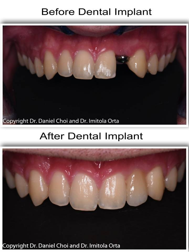 North Texas Dental Surgery Wisdom Teeth and Denture Implant Cent - dentist  | Photo 7 of 7 | Address: 5345 W University Dr #100, McKinney, TX 75071, USA | Phone: (214) 592-0692