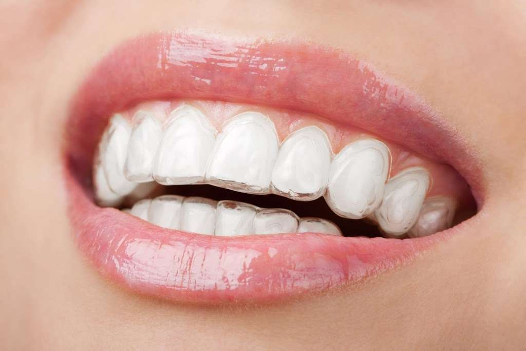 Amazing Smiles Of Kansas City - dentist  | Photo 9 of 10 | Address: 8915 State Ave, Kansas City, KS 66112, USA | Phone: (913) 788-7600