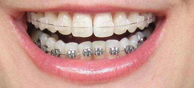 Advanced Dental Group - dentist    Photo 3 of 7   Address: 1450 El Camino Real Unit #D, Tustin, CA 92780, USA   Phone: (714) 665-1111