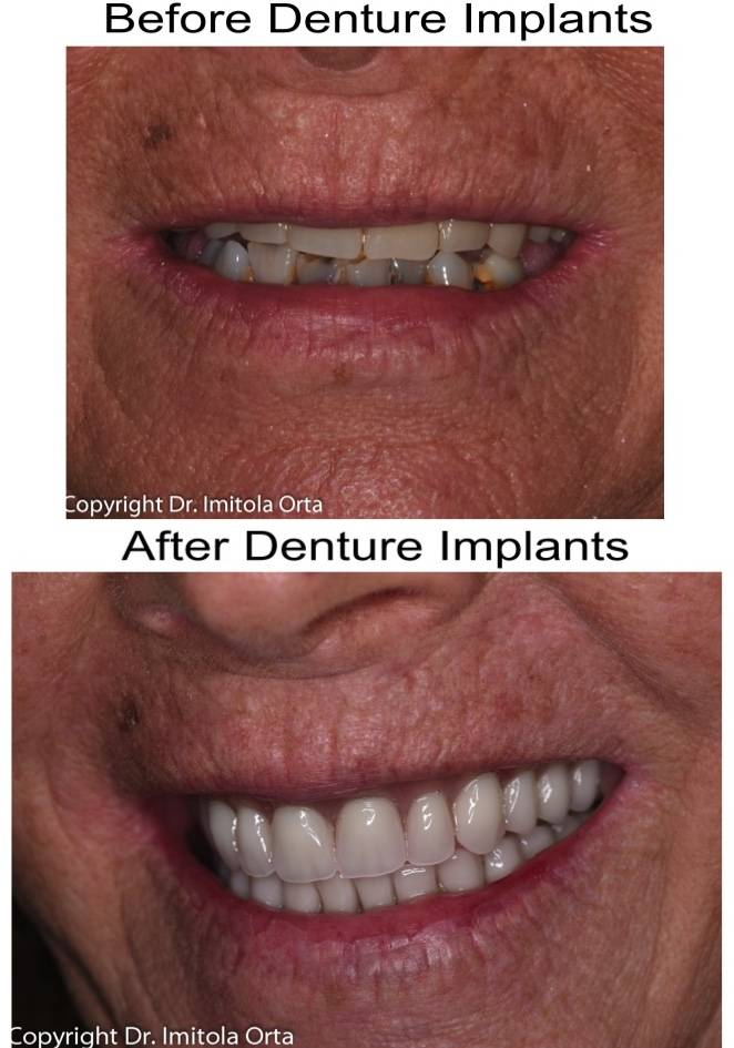 North Texas Dental Surgery Wisdom Teeth and Denture Implant Cent - dentist  | Photo 5 of 7 | Address: 5345 W University Dr #100, McKinney, TX 75071, USA | Phone: (214) 592-0692