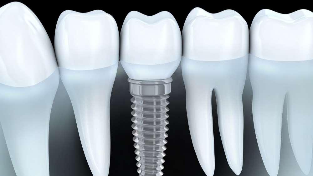 Dr Naser Sharifi Implant Dentistry - dentist  | Photo 4 of 10 | Address: 25315 80th Ave Ste 1, Queens, NY 11004, USA | Phone: (718) 470-9000
