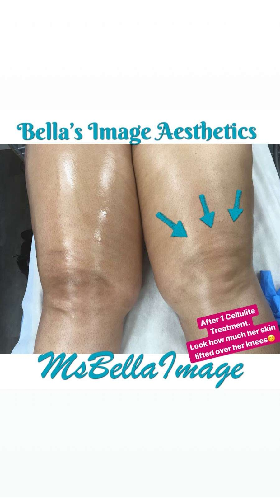 Bella's Image Aesthetics - spa  | Photo 7 of 10 | Address: 249-12 Jericho Turnpike, Floral Park, NY 11001, USA | Phone: (516) 502-4939