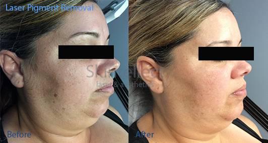 Skintellect Laser & Aesthetics - hair care    Photo 8 of 10   Address: 10205 W Hillsborough Ave b, Tampa, FL 33615, USA   Phone: (813) 403-6002