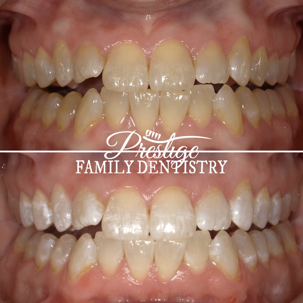 Prestige Family Dentistry - dentist  | Photo 2 of 10 | Address: 4251 Cross Timbers Rd #100, Flower Mound, TX 75028, USA | Phone: (972) 539-2820