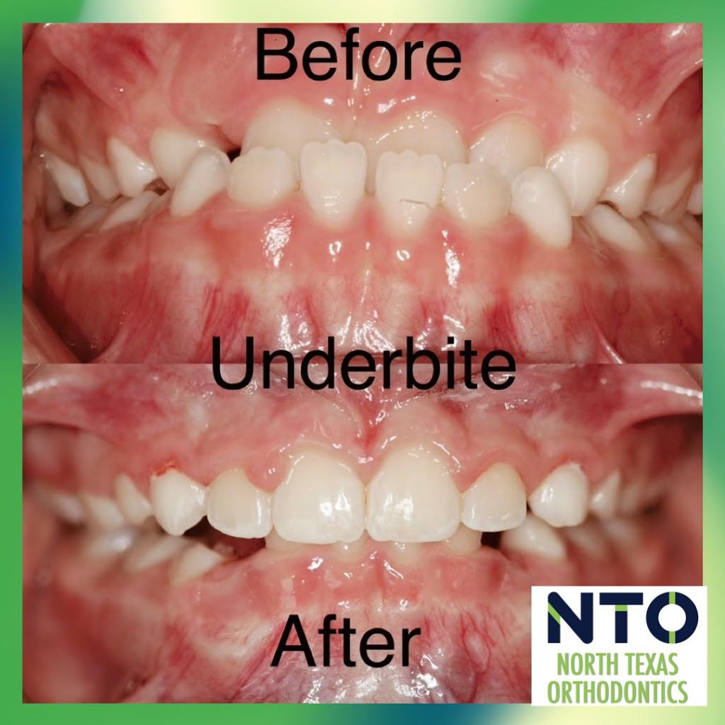 North Texas Orthodontics - dentist  | Photo 9 of 10 | Address: 200 W FM 545 #2, Blue Ridge, TX 75424, USA | Phone: (469) 663-6260