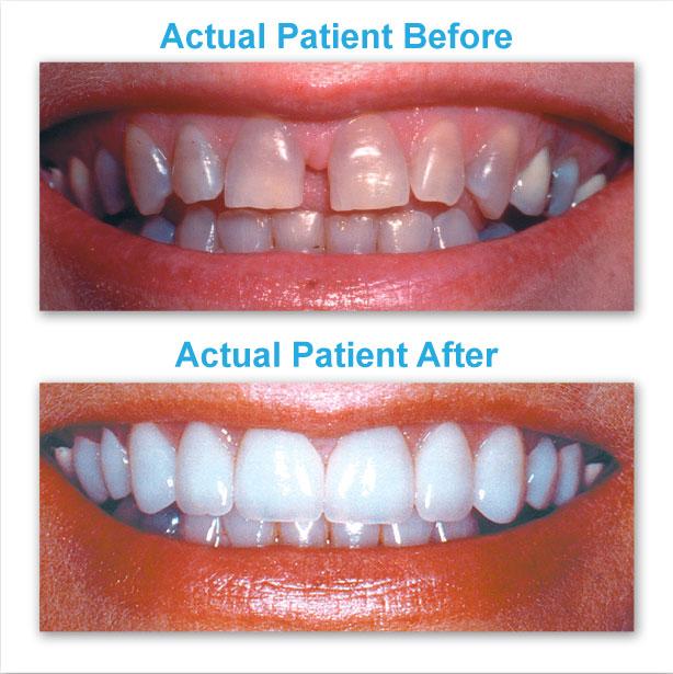 North Creek Dental Care - dentist  | Photo 3 of 6 | Address: 18425 W Creek Dr, Tinley Park, IL 60477, USA | Phone: (708) 532-4131