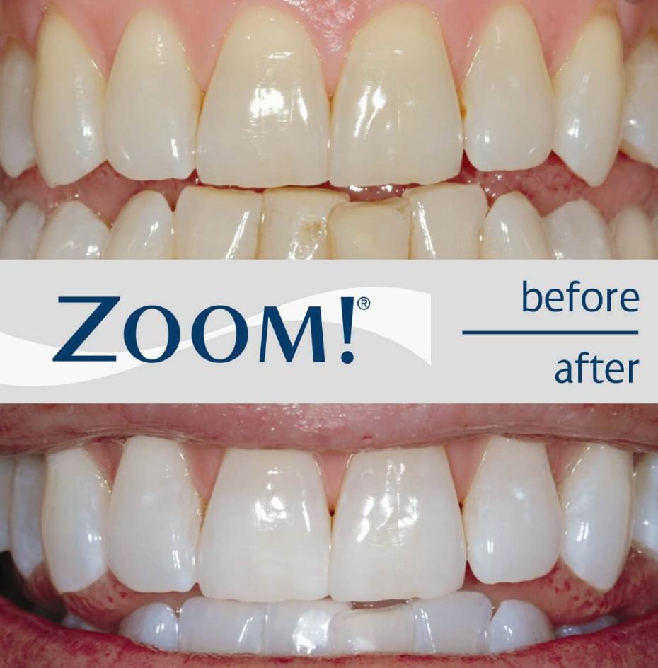 Aesthetic Orthodontist - dentist  | Photo 8 of 10 | Address: 4939 Lower Roswell Rd # A-105, Marietta, GA 30068, USA | Phone: (770) 671-0400