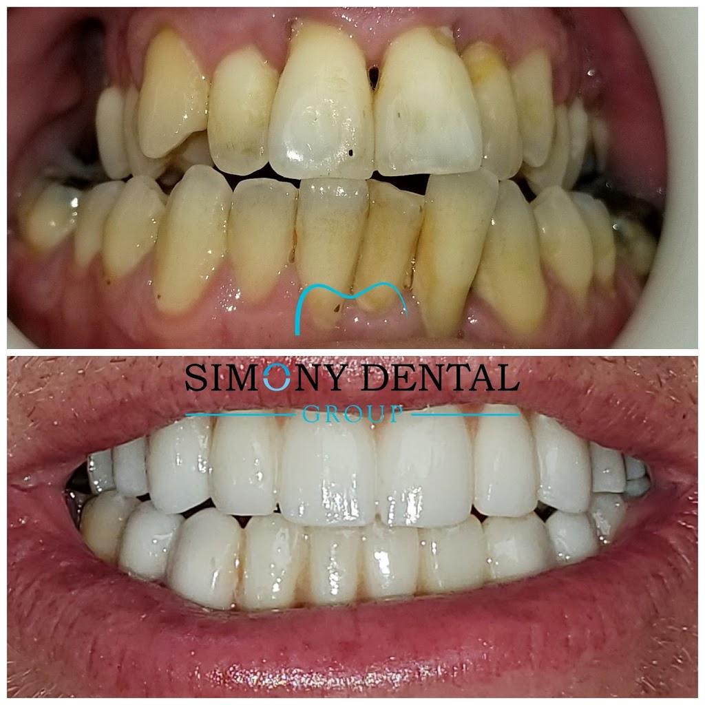 Simony Dental Group - dentist  | Photo 6 of 10 | Address: 41700 Hayes Rd suite d, Clinton Twp, MI 48038, USA | Phone: (586) 263-9300