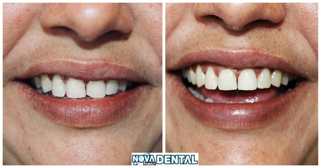 Nova Family Dental - dentist  | Photo 5 of 5 | Address: 6738 Forest Hill Dr, Forest Hill, TX 76140, USA | Phone: (817) 984-1777