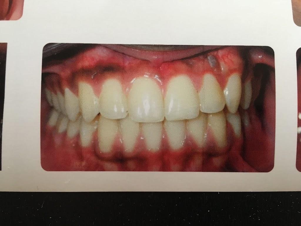 Bailey Orthodontics - dentist  | Photo 1 of 3 | Address: 13335 Voyager Pkwy, Colorado Springs, CO 80921, USA | Phone: (719) 598-2800