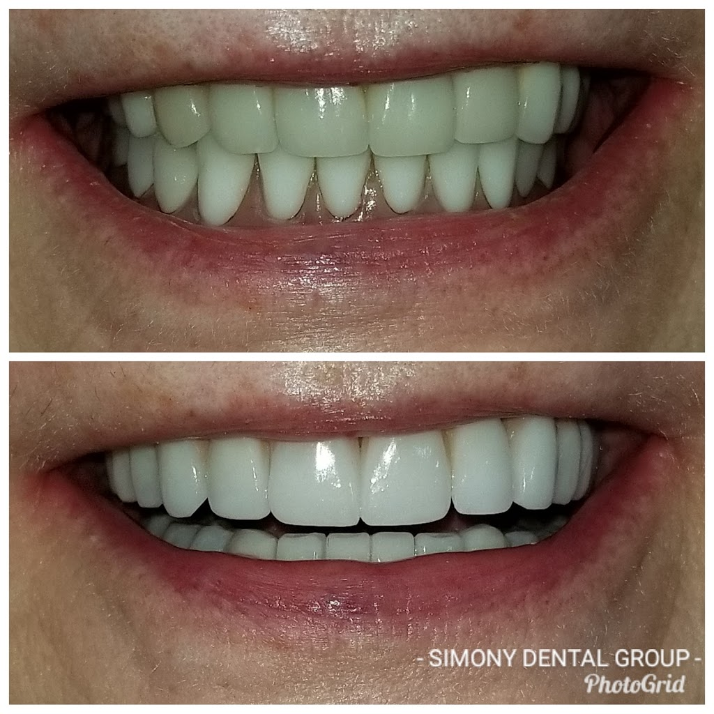 Simony Dental Group - dentist  | Photo 1 of 10 | Address: 41700 Hayes Rd suite d, Clinton Twp, MI 48038, USA | Phone: (586) 263-9300