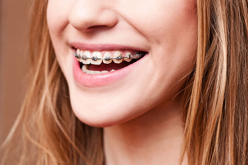Wave Dental El Segundo - Dentist in El Segundo 90245 - dentist  | Photo 6 of 10 | Address: 390 N Pacific Coast Hwy #1050, El Segundo, CA 90245, USA | Phone: (424) 290-3020